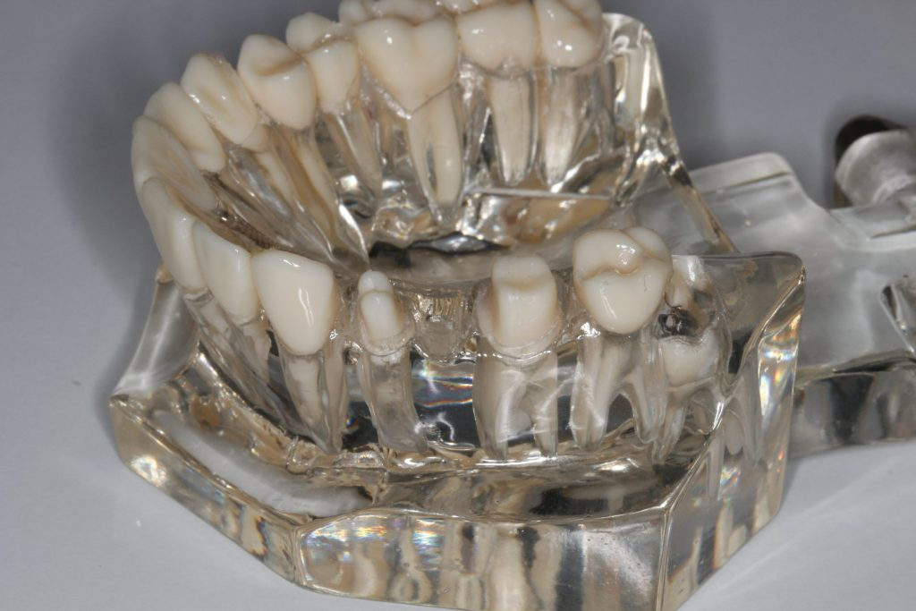 Zęby oszlifowane pod most